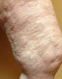 Vein Before & After Patient #439