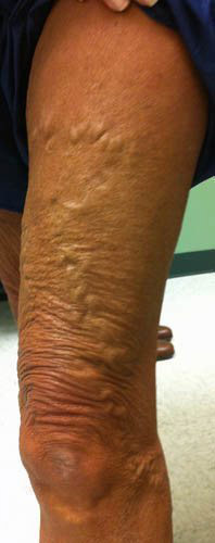Vein Before & After Patient #443