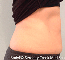 BodyFX Before & After Patient #632