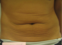 Forma Plus Before & After Patient #673
