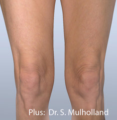 Forma Plus Before & After Patient #677