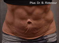 Forma Plus Before & After Patient #683