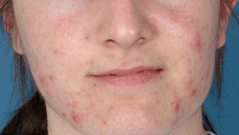 Chemical Peels Before & After Patient #641